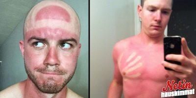 Aurinko voi olla julma tatuoija! – Katso kirpaisevat kuvat!