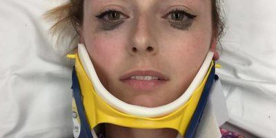 Naisen eyelinerin arvostelu menee viraaliksi, kun hän julkaisee kuvan itsestään auto-onnettomuuden jälkeen!