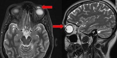 Nainen kadotti piilarin 14-vuotiaana – löysi sen 28 vuotta myöhemmin silmästään!