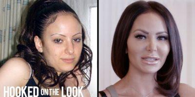 Nainen on käyttänyt yli 100 000 dollaria kauneusleikkauksiin – haluaa olla täydellinen!