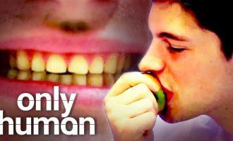 Hän ei voi syödä omenaa – katso video miksi!